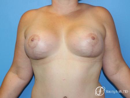 Denver Breast Augmentation Mastopexy 8507 -  After Image 1