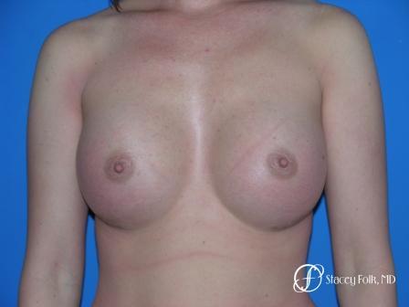 Denver Breast Augmentation 33 -  After Image 1