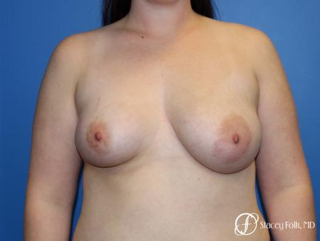 Fat Transfer To Right Breast - 1 After Image 1