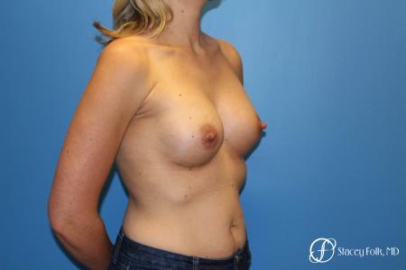 Denver Breast Augmentation 4816 -  After Image 3