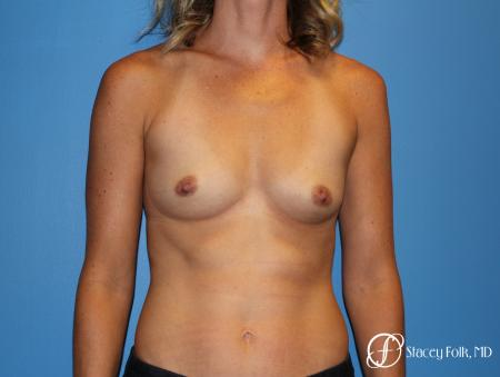 Denver Breast augmentation 4740 - Before Image