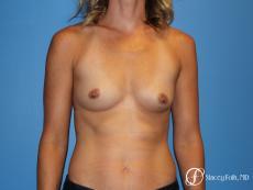 Denver Breast augmentation 4740 - Before Image