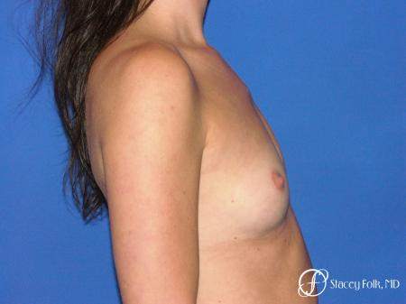 Denver Breast Augmentation 4779 - Before and After Image 3