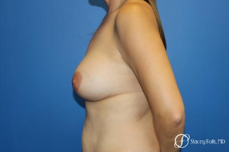 Fat Transfer Breast Lift (Mastopexy) - Before and After Image 3