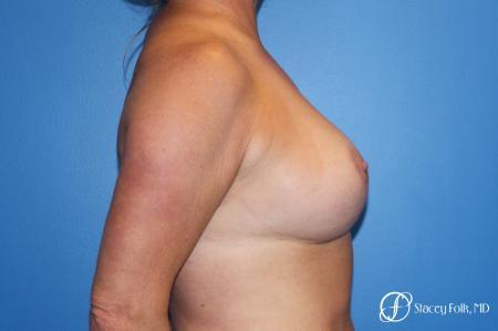 Denver Breast Lift 10252 -  After Image 3