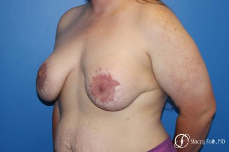 Breast Lift (Mastopexy) - Before Image 2