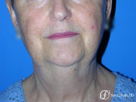 Denver Facial Rejuvenation Face Lift and Fat Injections 7130 - Before and After Image 2