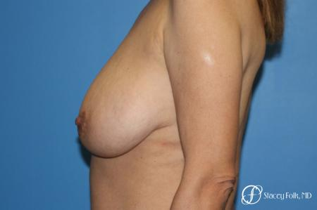 Denver Breast Lift - Mastopexy 7984 - Before and After Image 3