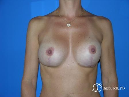 Denver Breast Revision 48 - After Image