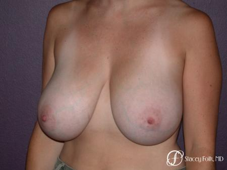 Denver Breast Reduction 42 - Before and After Image 2