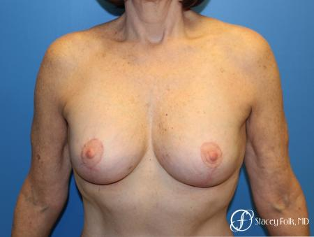 Denver Breast Revision 7990 - After Image