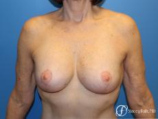 Denver Breast Revision 7990 - After Image