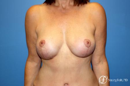 Denver Fat Transfer Breast Lift Mastopexy with Fat Transfer to the Breast 6916 - After Image