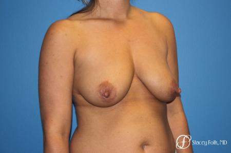 Denver Breast Lift and Augmentation 8629 - Before Image 2