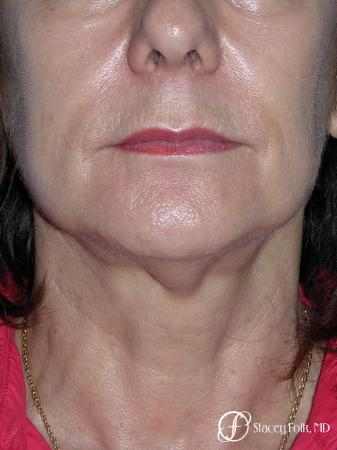 Denver Facial Rejuvenation Face Lift and Fat Injections 7117 - Before and After Image 3