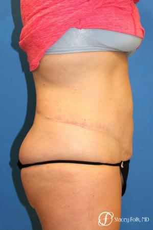 Denver Coolsculpting 8157 - Before and After Image 2