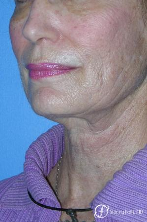 Denver Facial Rejuvenation Face Lift, Fat Injections, Laser Resurfacing 7116 - Before Image 2