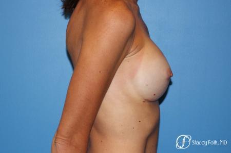 Denver Breast Revision 8504 -  After Image 3