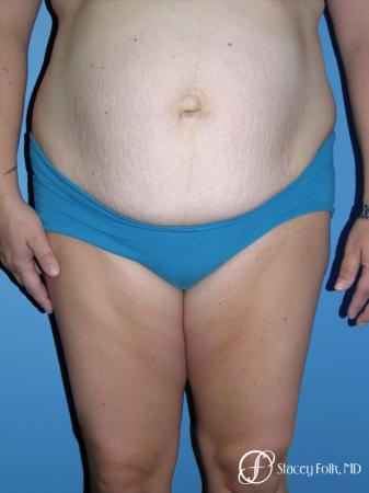 Denver Tummy Tuck - Abdominoplasty 7714 - Before Image