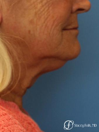 Facelift and Laser - Before Image