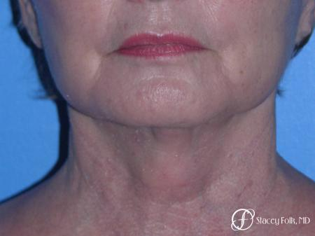 Denver Facial Rejuvenation Face Lift, Fat Injections, and Laser Resurfacing 7120 -  After Image 3