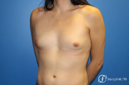 MTF (Male To Female Top Surgery) Breast Augmentation - Before Image 2