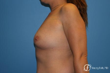 Denver Breast augmentation using textured implants 8271 - Before and After Image 2