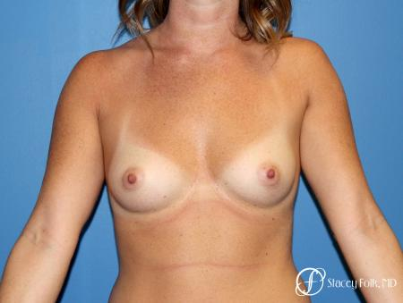 Denver Breast Augmentation using Sientra Silicone Breast Implants 9092 - Before Image