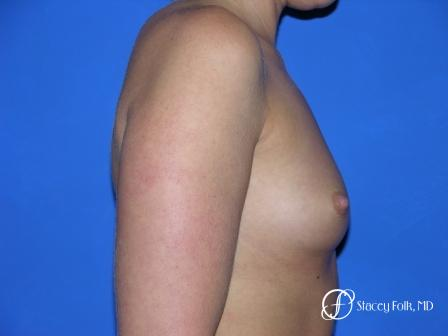 Denver Breast Augmentation 958 - Before and After Image 2