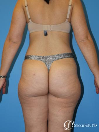 Denver Liposuction 8512 - Before Image