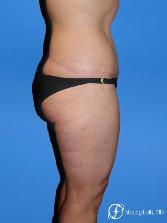 Denver Body Lift Belt lipectomy & liposuction 5264 -  After Image 3