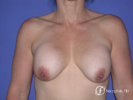 Denver Breast Revision 52 - Before Image