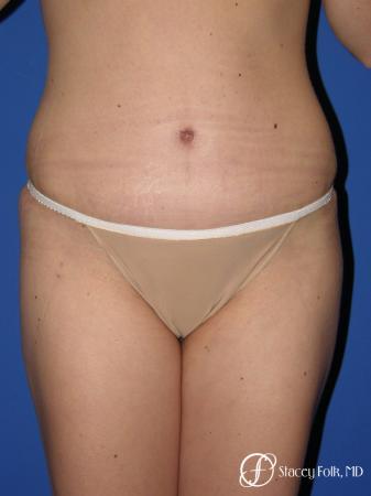 Denver Tummy Tuck - Abdominoplasty 10351 -  After Image 1