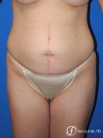 Denver Tummy Tuck - Abdominoplasty 10351 - Before Image 1