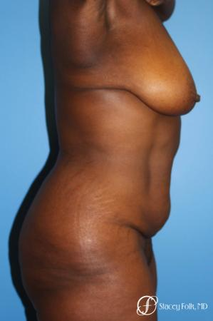 Denver Breast Lift - Mastopexy, and Tummy Tuck - Abdominoplasty 7512 - Before and After Image 4