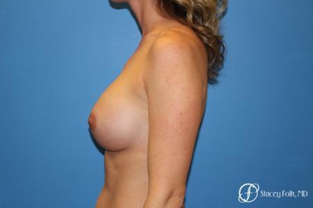 Denver Breast augmentation 4740 -  After Image 5