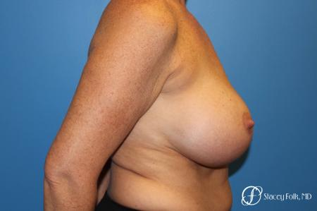 Denver Breast Revision 8543 - Before and After Image 3