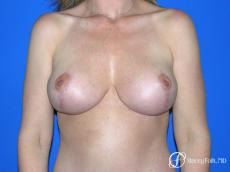 Denver Breast Reduction Mastopexy 5455 - After Image