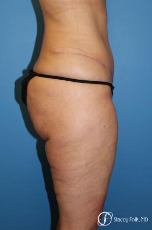 Tummy Tuck - Abdominoplasty -  After Image 3