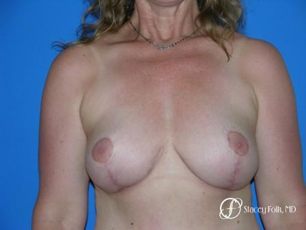 Denver Breast Revision 50 - After Image