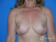 Denver Breast Revision 50 - After Image