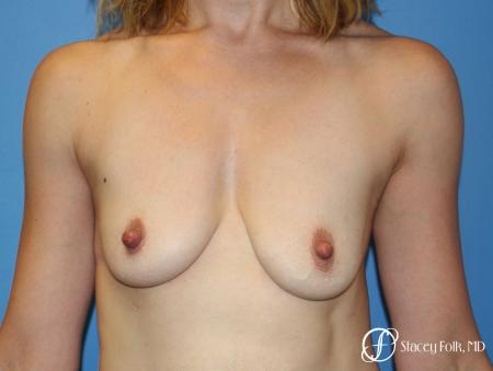 Breast Augmentation and Breast lift (Mastopexy) - Before Image 1