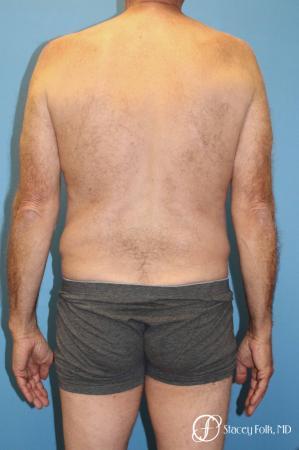 Denver Body Lift - Belt Lipectomy 8570 - Before Image 2