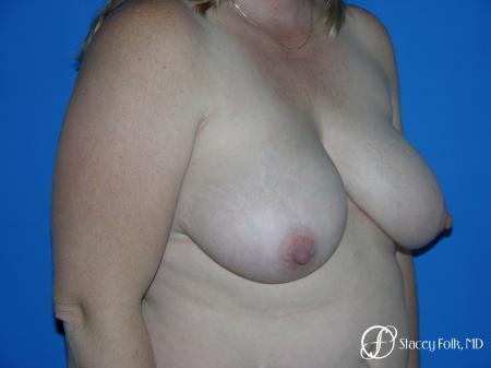 Denver Breast Reduction 4790 - Before Image 2