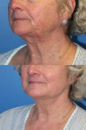 Denver J-Plasma Face Laser resurfacing with J-Plasma 10864 -  After Image 1