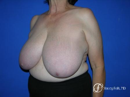 Denver Breast Reduction 37 - Before Image 2