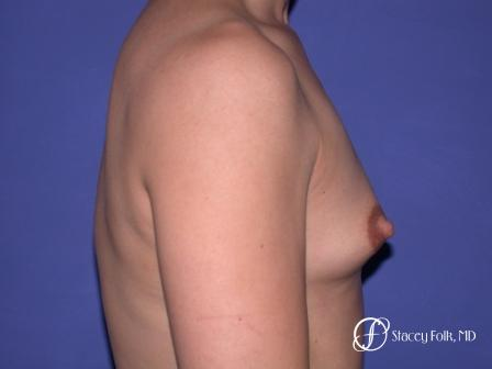 Denver Breast Augmentation 32 - Before and After Image 3