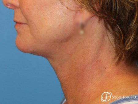 Denver Facial Rejuvenation Face Lift 7121 -  After Image 1