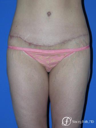 Denver Body Lift Belt lipectomy 5262 - After Image
