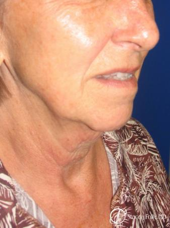 Denver Facial Rejuvenation Face Lift and Fat Injections 7129 - Before Image 2
